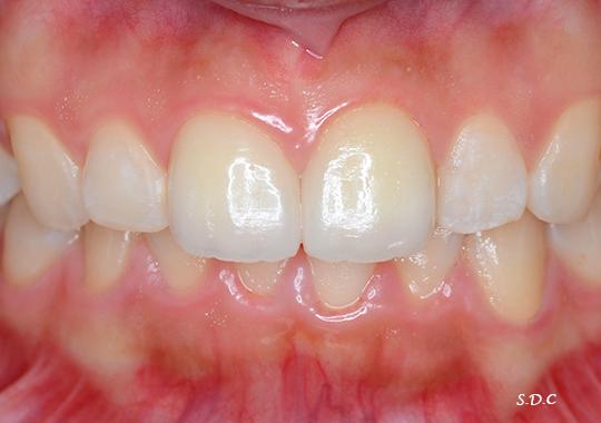 さかなか歯科の審美治療